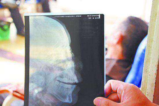 臧大爷在医院接受治疗,拍片显示其鼻梁骨折。