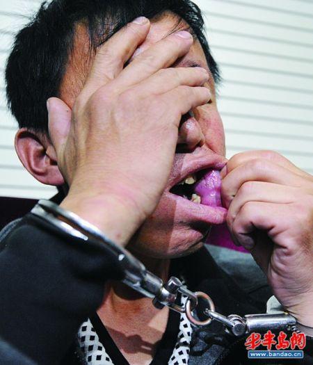 于某向记者展示他在香港中路一家酒店用瓷片割破的伤口