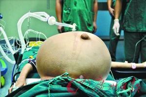 重达30斤的畸胎瘤被成功摘除。(记者莫伟浓 实习生郑凯夫 摄)