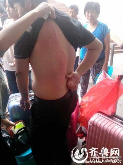 """昨天下午16时28分,微博上一条""""济南火车站出口扶梯发生故障突逆袭 至少4人受伤""""的消息被迅速转载。(网上图片)"""
