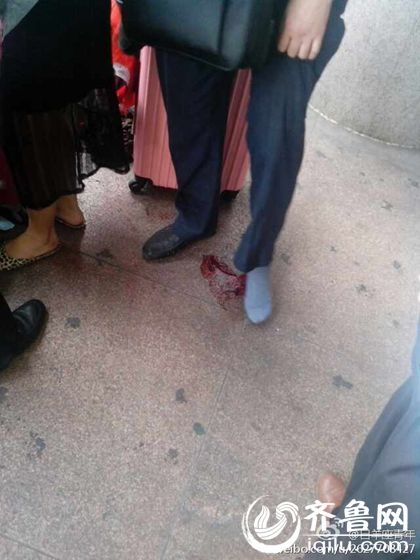 事故发生后,济南火车站工作人员及时拨打120。医务人员到场进行包扎处理。(网上图片)