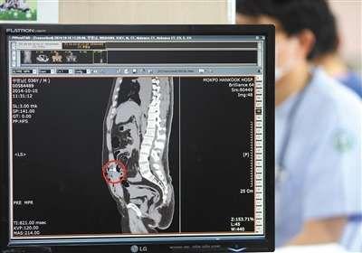 昨日,韩国医院方面公布死亡中国船长的CT扫描图,图像显示其左侧腹部有中弹的枪伤,体内还留有子弹残骸(红圈位置)。 新华社/韩联社