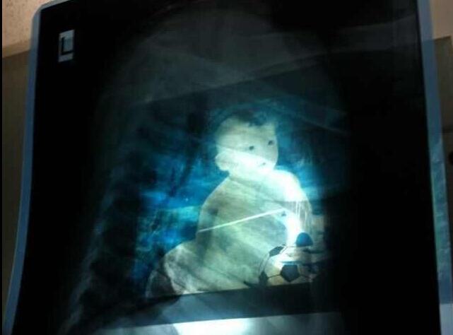 """河南女婴心脏部位发现""""钢针"""""""