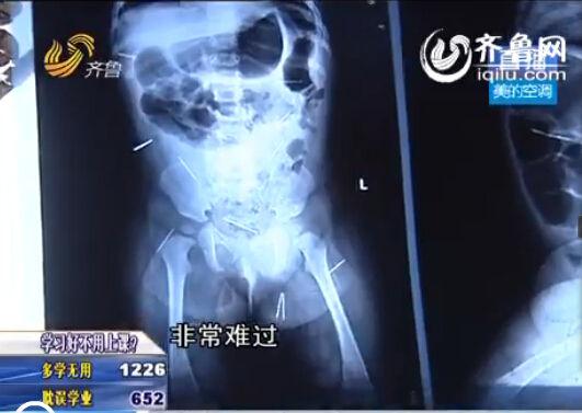 聊城女婴体内被扎钢针追踪:村民捐款北京医院连夜会诊