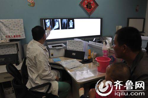 北京儿童医院急诊科医生正在为体内被插钢针女婴分析病情