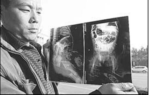 聊城女婴体内被插16根钢针 北京医院连夜会诊