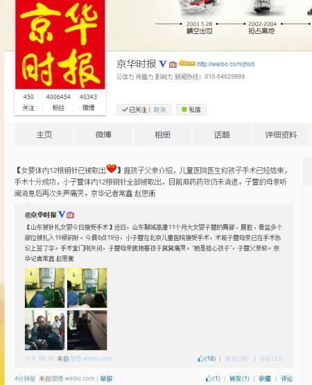 京华时报官微:聊城被针扎女婴体内12根钢针已被取出