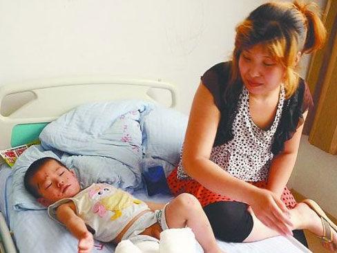 2岁男童被撞伤