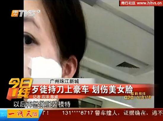 女模特在男友豪车内遭歹徒抢劫划脸毁容